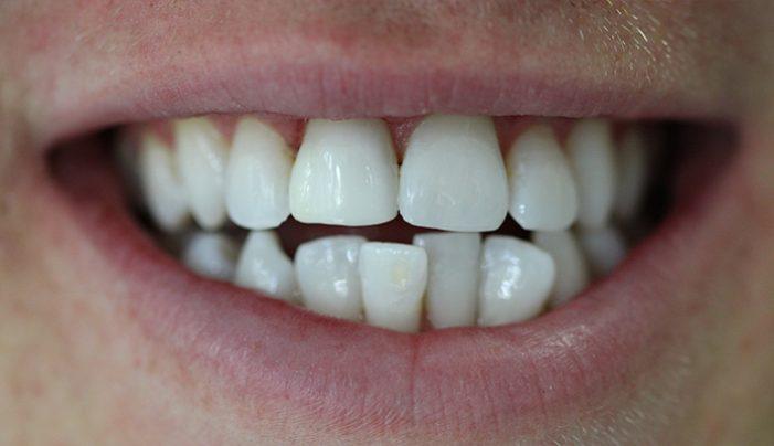 After - Smilemakerdentalcare