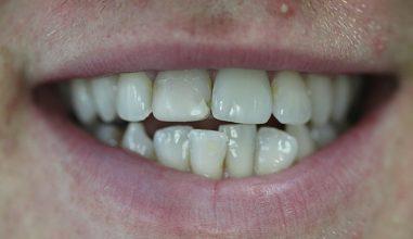 Before - Smilemakerdentalcare